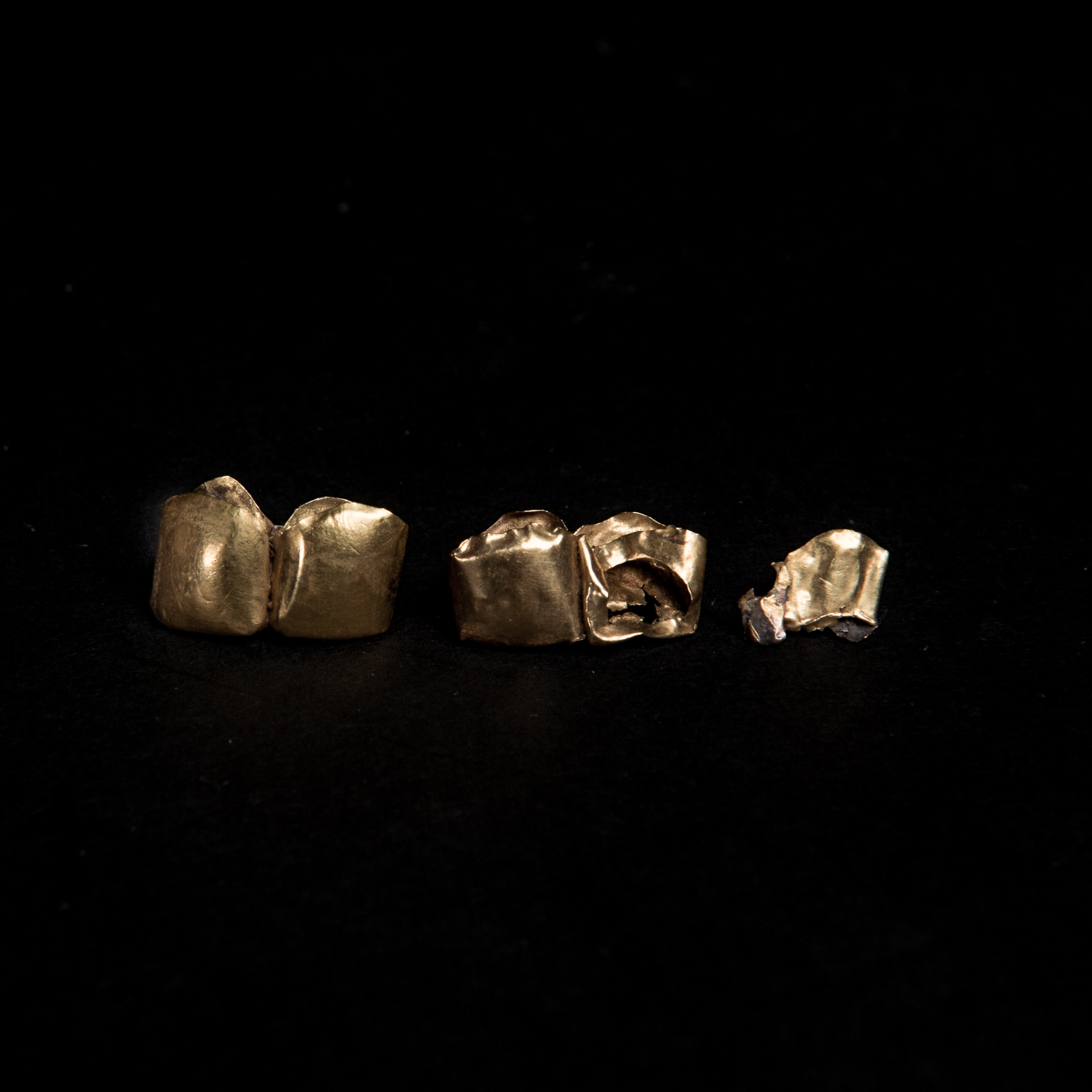 Lie Soei Pin's Gold Teeth